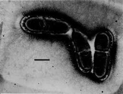 Clostridium scindens osservato al microscopio elettronico