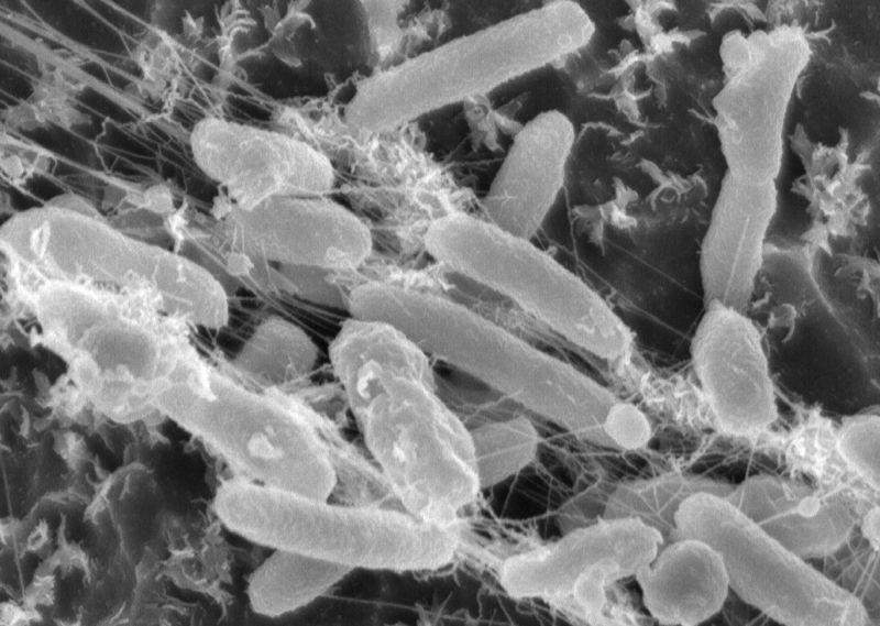 Ideonella sakaiensis al microscopio