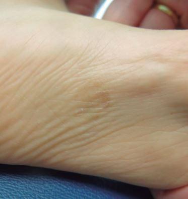 Lesione maculare marrone chiaro sulla pianta del piede [Marìa Consuelo Giordano L. et al., 2018]