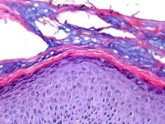 Biopsia cutanea colorata con ematossilina-eosina  [https://www.dermatologyadvisor.com/home/decision-support-in-medicine/dermatology/tinea-nigra-tinea-nigra-palmaris-tinea-nigra-plantaris-pityriasis-nigra-keratomycosis-nigricans-palmaris/]