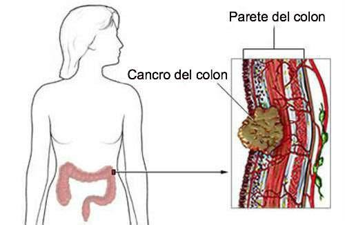 massa tumorale nell'intestino - microbiota sano