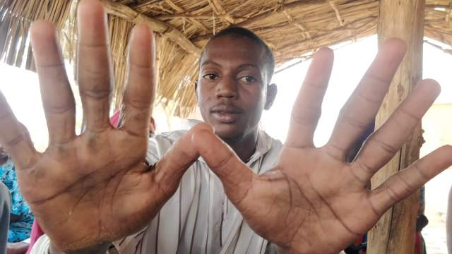 Abou Diop's has calloused palms from the wood chopping he does to make ends meet (MEE/Amandla Thomas-Johnson)