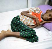 UN agencies: More than one million children starve as Yemen war rages