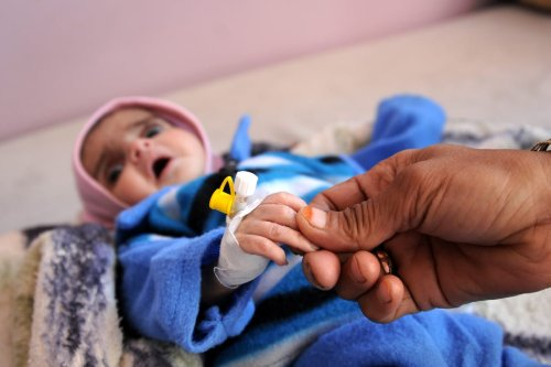 A baby receives treatment at the Sabaeen hospital in Sanaa, Yemen on January 18, 2017 [Mohammed Hamoud/Anadolu Agency]