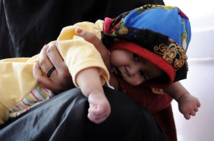 A baby receives treatment at the Sabaeen hospital in Sanaa, Yemen on January 18, 2017 ( Mohammed Hamoud - Anadolu Agency )