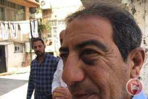 52-year-old Ahmad Darwish, pictured with a black eye inflicted by the police beating. [Image: Ma'an news agency]