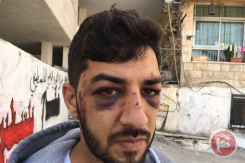 28-year-old Mansour Darwish, beaten by Israeli police after attempting to welcome his cousin home from prison [Image: Ma'an news agency]