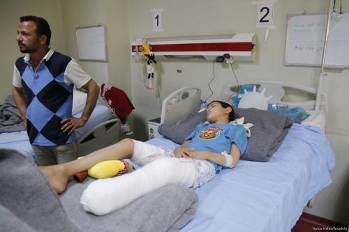 An Iraqi boy who was injured due to airstrikes, receives treatment at a hospital in Erbil, Iraq on April 12, 2017. ( Yunus Keleş/Anadolu Agency )
