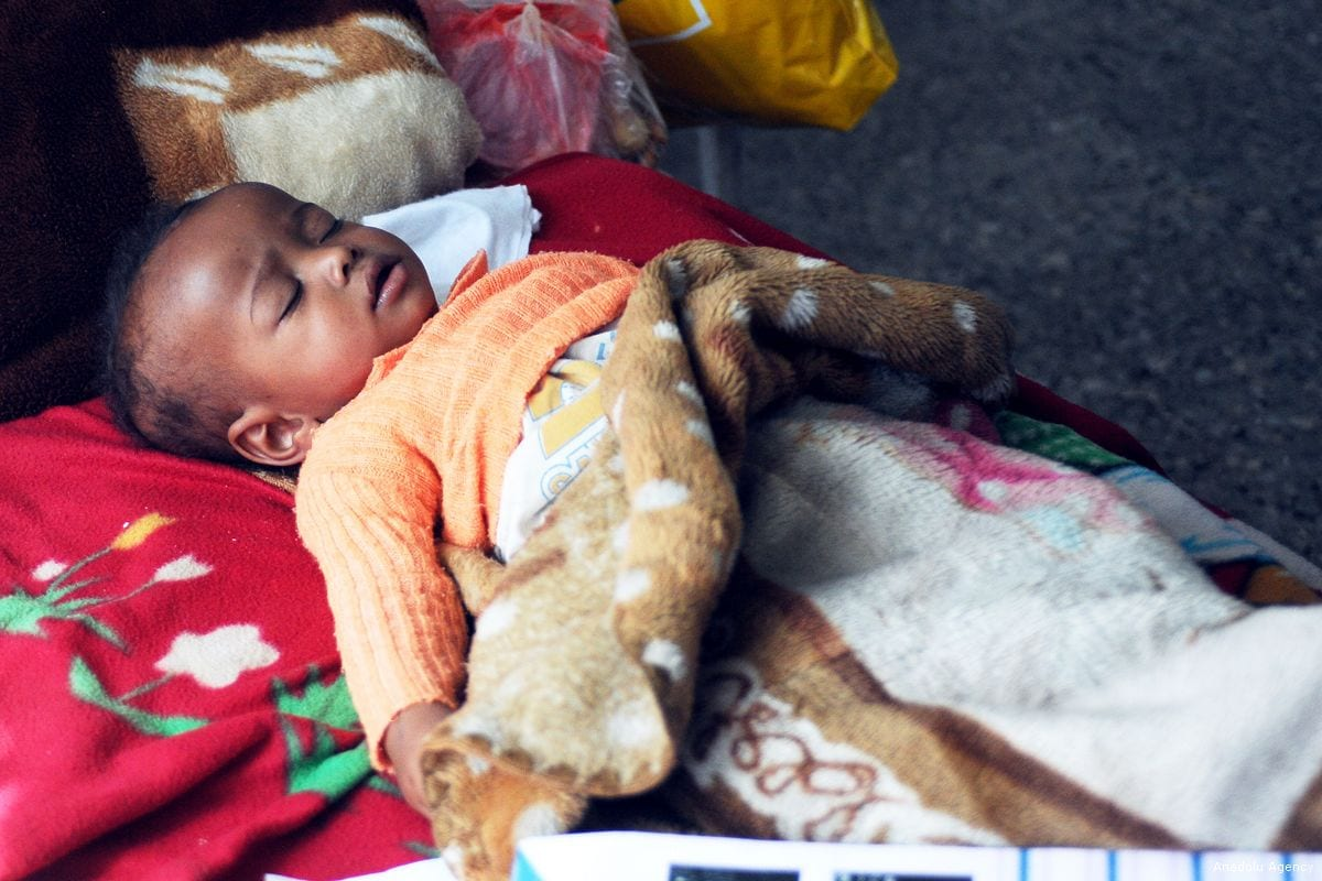 A malnourished baby receives medical treatment at al Sabeen Maternal Hospital in Sanaa, Yemen on 20 November 2017 [Mohammed Hamoud/Anadolu Agency]