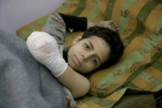 """DAMASCUS, SYRIA - MARCH 02: A Syrian boy raises his amputated arm while lying on a stretcher as he poses for a photo for the awareness-raising campaign """"#Iamstillalive"""" on the social media, organized by activists and children, demanding support for the humanitarian crisis caused by Assad Regime and its supporters in Eastern Ghouta of Damascus, Syria on March 02, 2018. ( Amer Alshami - Anadolu Agency )"""