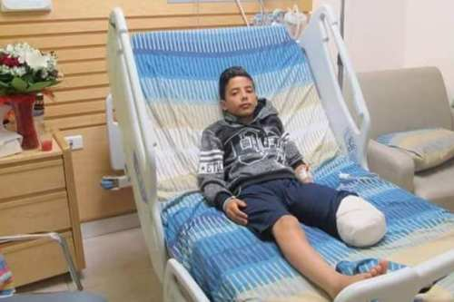 12-year-old Abdel Rahman Nawfal who has lost his left leg after being shot by Israeli forces amid an increased sniper presence on the Gaza border [Twitter]