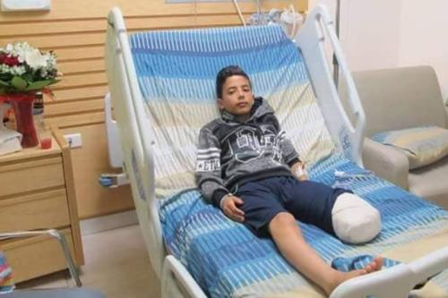 12 year-old Palestinian shot by Israel army sniper loses leg