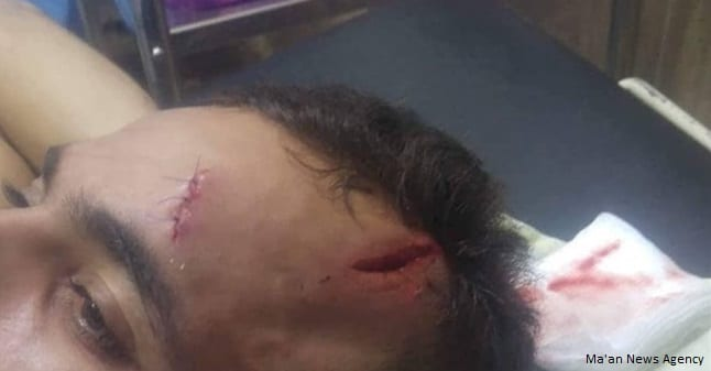 Injures from an attack by Israeli settlers in Nablus, West Bank [Ma'an News Agency]