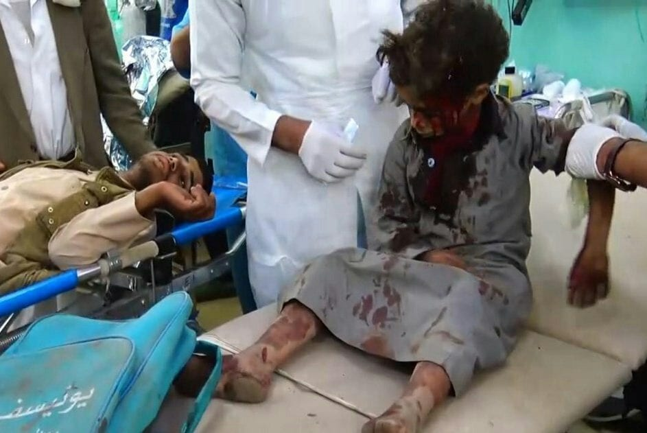 A child receives treatment after a Saudi-led coalition air strike in Yemen on 9 August 2018 [Ansar Allah Media Centre]