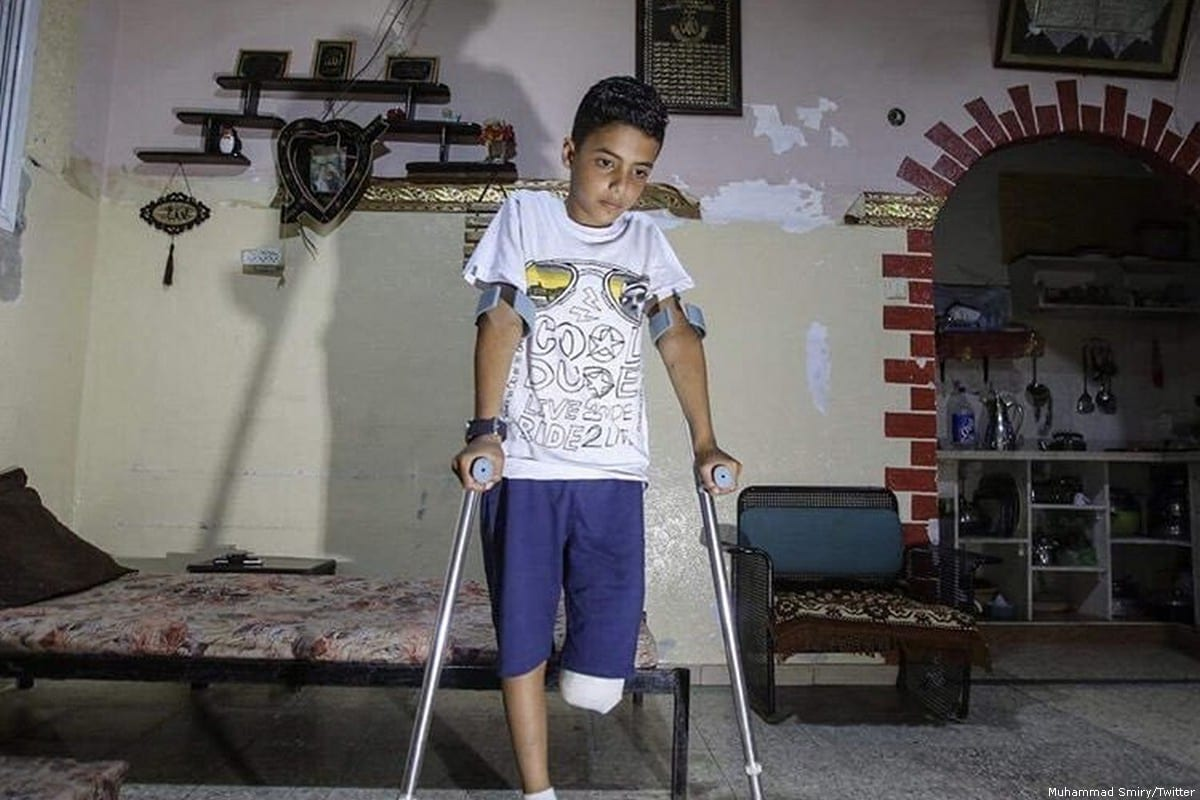 Eleven-year-old Abdulrahman Nofal, lost a leg after being shot by an Israeli soldier [Muhammad Smiry/Twitter]