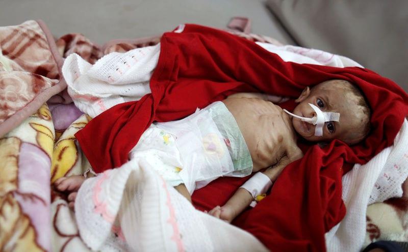 """Yemen war a """"living hell"""" for children – UNICEF"""
