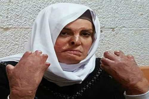 Palestinian prisoner Israa Jaabis suffered burns after a faulty cooking gas cylinder in her car burst into flames