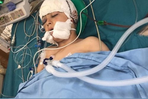 Palestinian child, Abdul Rahman Yasser Shteiwi, 10, was shot in the head by Israeli occupation forces [Twitter]