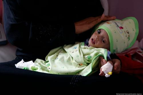 A malnourished baby receives medical treatment at a hospital in Sanaa, Yemen on 7 October 2019 [Mohammed Hamoud/Anadolu Agency