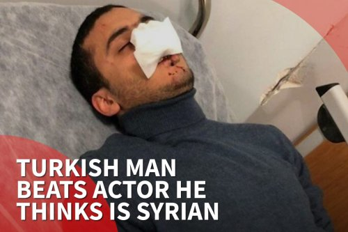 thumbnail - Turkish man beats actor he thinks is Syrian
