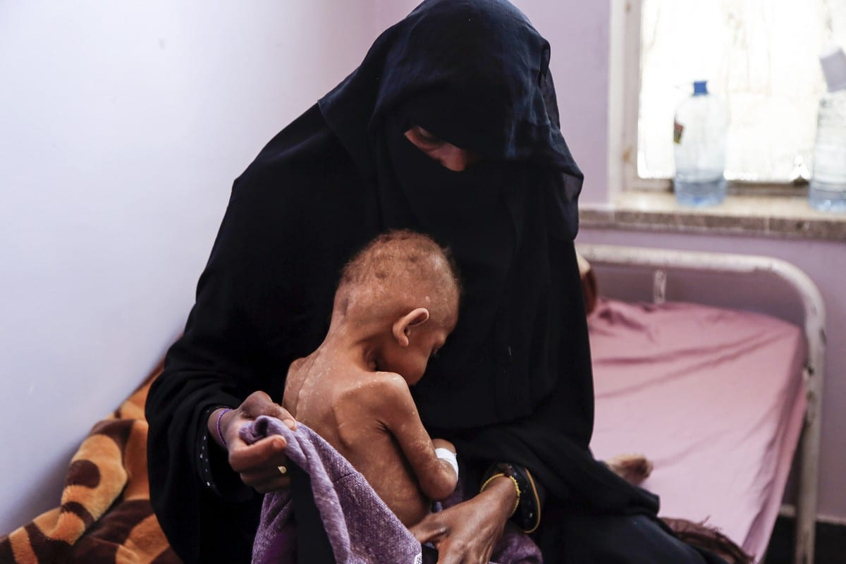 A woman holding her kid receiving medical aid due to malnutrition at Al Sabeen Maternal Hospital as Yemeni children face deadly hunger and aid shortages in Sanaa, Yemen on 13 February 2021. [Mohammed Hamoud - Anadolu Agency]