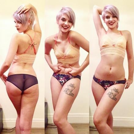 jovem anorexia 2