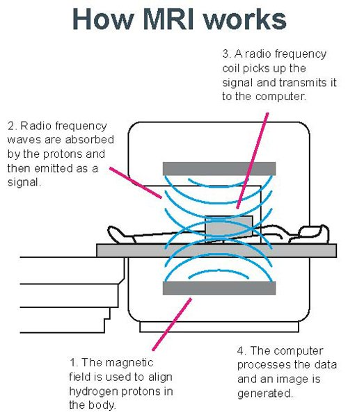 Mri Scanner How It Works