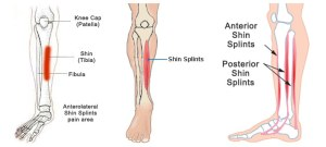 Shin-Splints-1