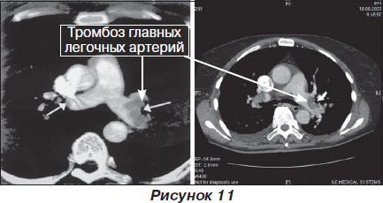 Симпозиум Тромбоэмболия легочной артерии алгоритмы
