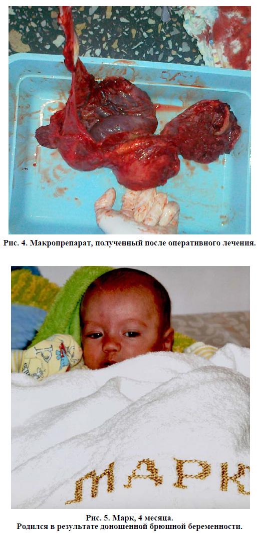 Клинический случай: успешное родоразрешение ...