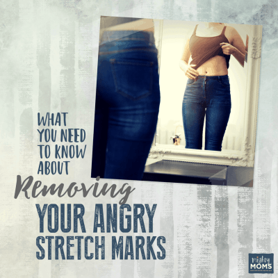 What You Need to Know About Taming Your Angry Stretch Marks