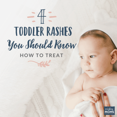 Toddler Rashes to Know About - MightyMoms.club