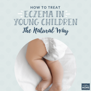How to Treat Eczema Naturally - MightyMoms.club