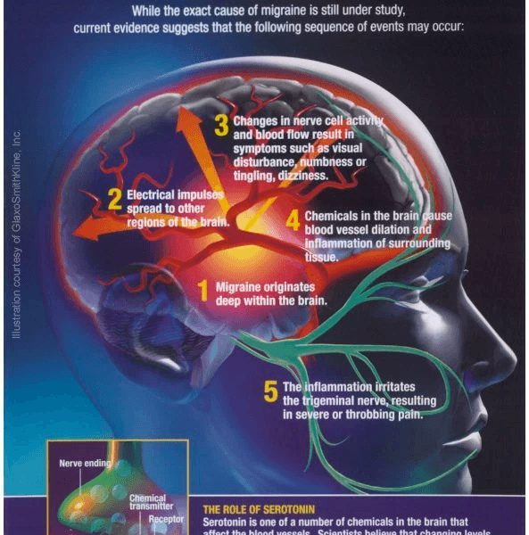 CGRP antibodies: A potential game changer in migraine prevention