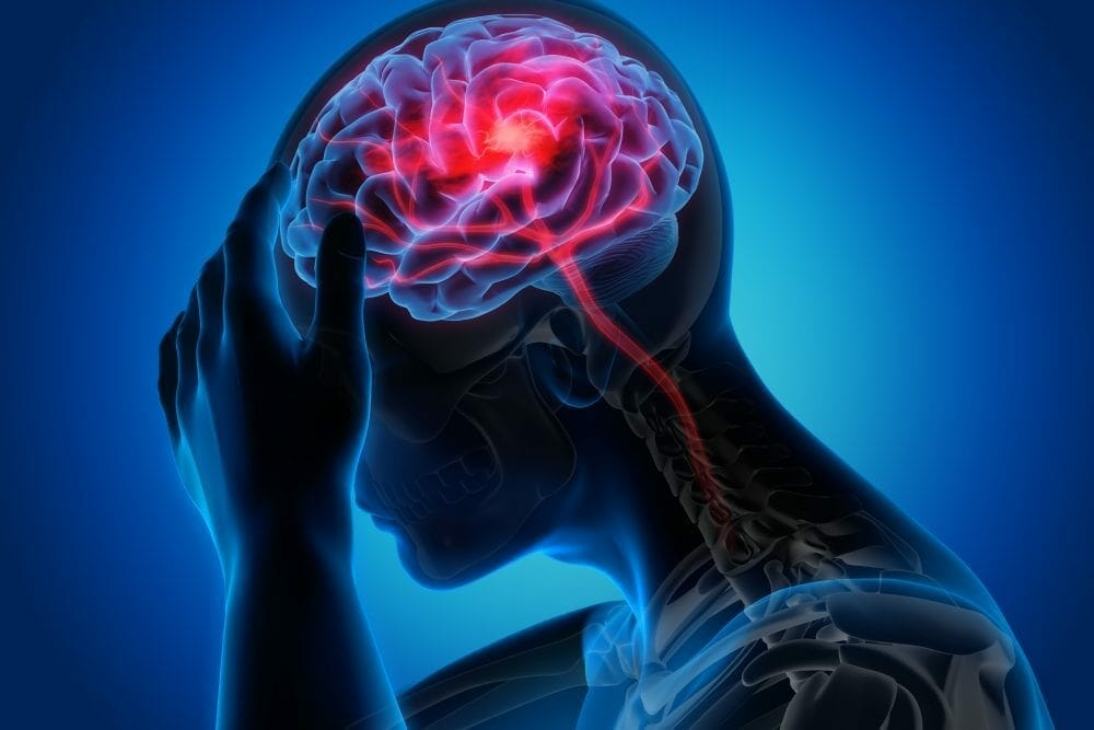 The Relationship Between Stroke and Migraine | Association of ...