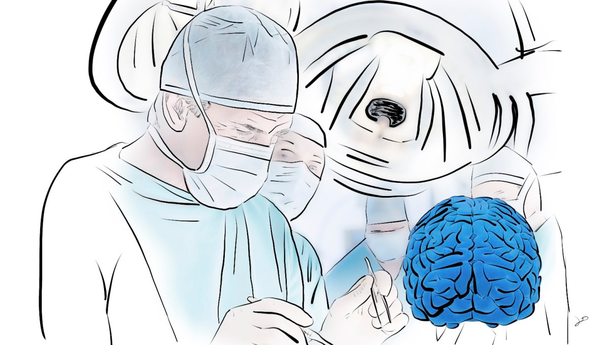 Migraine Surgery: Does it Work? New Study.
