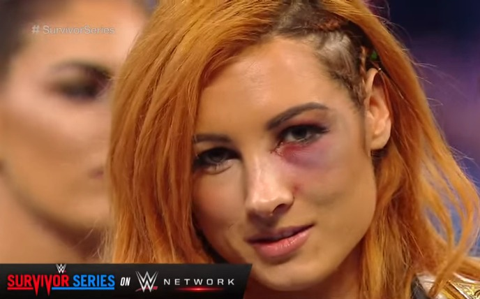 expected-angry-becky-lynch-names-survivor-series-opponent