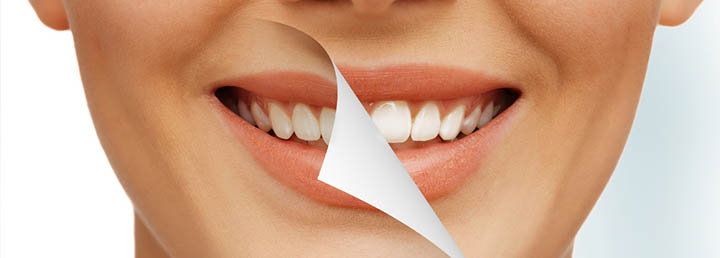 How to whiten Yellow teeth overnight