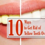 cure yellow teeth overnight