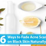 How to Fade Acne scars on Black Skin Naturally