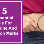 5 Essential Oils For Cellulite And Stretch Marks