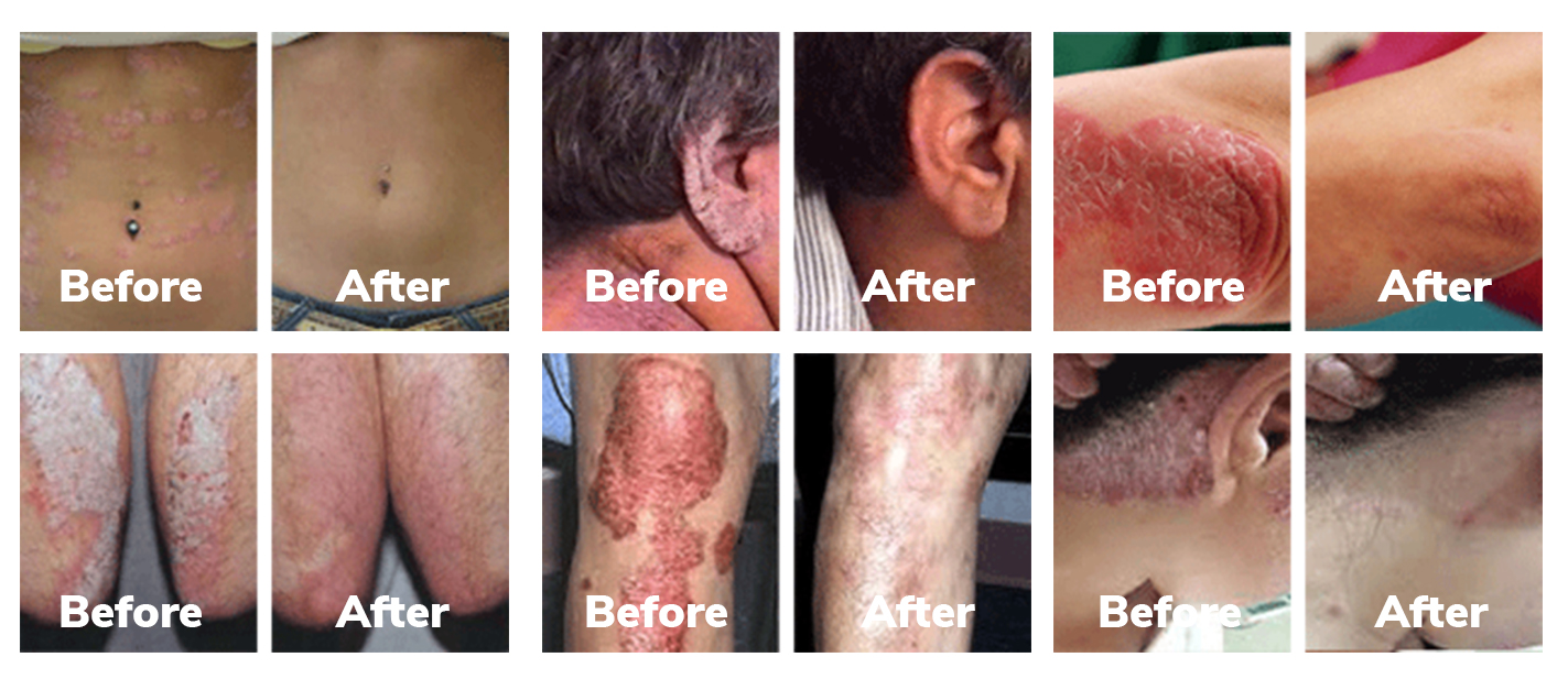 Psoriasis Strategy review