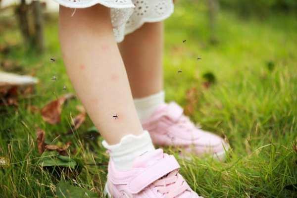 Menina com picadas de mosquito nas pernas