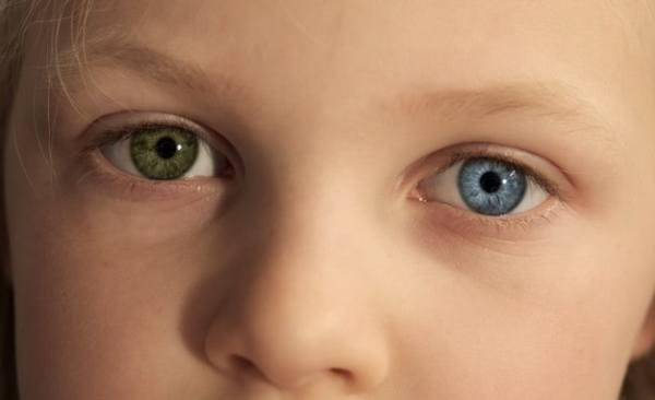 cor dos olhos diferentes