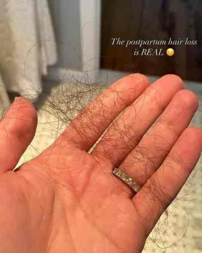 perda de cabelo da atriz michele