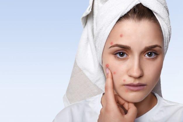 Leite materno para skin care