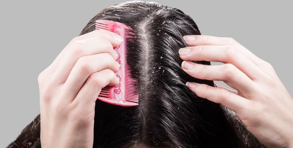 cabelo com caspa