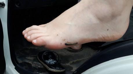 Leech, Blutegel, Australien, Barrington Tops Nationalpark, National Park, angesaugt, wie entferne ich blutegel