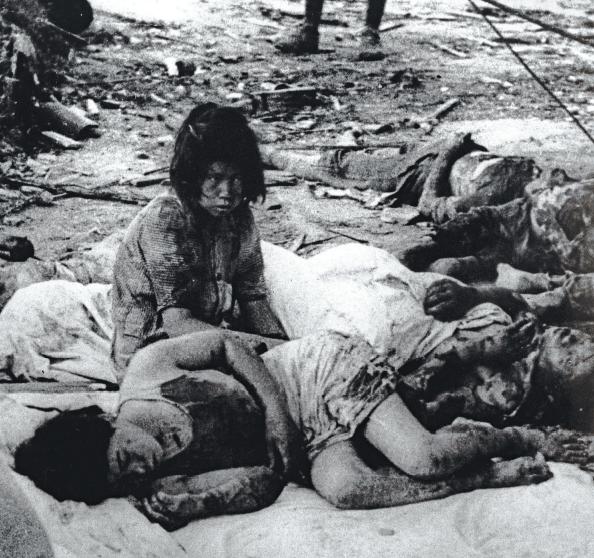 Victims of the Hiroshima bombing.