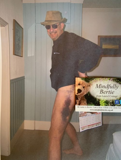 """A trouserless Bobby sporting a massive bruise on his left leg. A """"Mindfully Bertie"""" card is placed to conceal his embarrasment."""